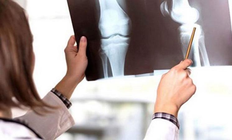 مراكش تحتضن أشغال المؤتمر الوطني ال28 لأمراض الروماتيزم -